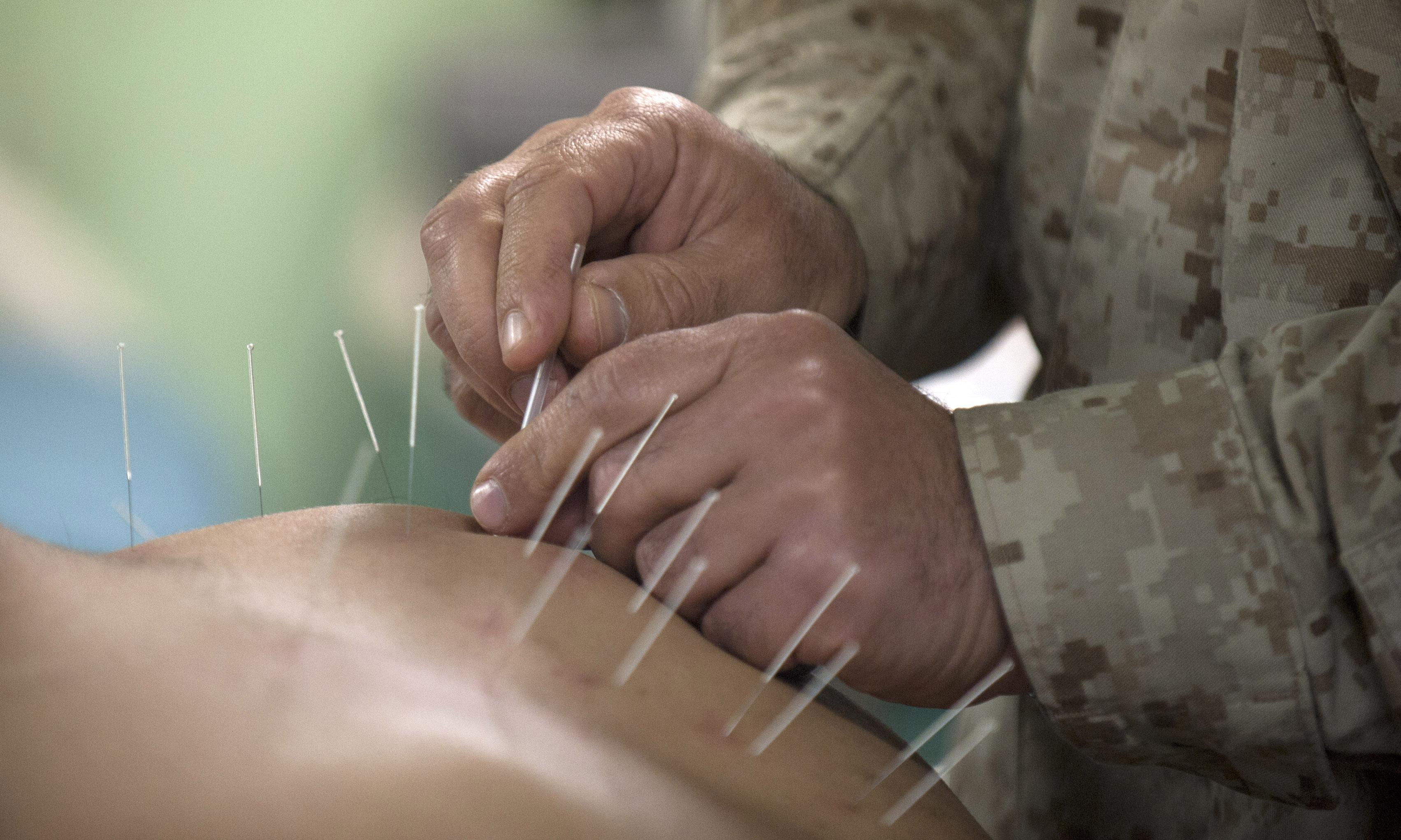 Hvad er akupunktur?